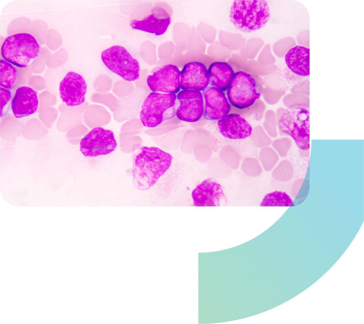 medical science background showing blast cells (AML)